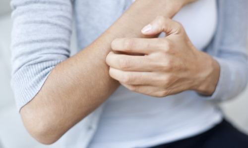 Why Do We Scratch An Itch?