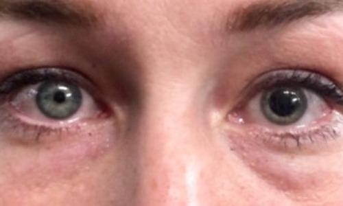 Your Mood Controls Pupil Dilation
