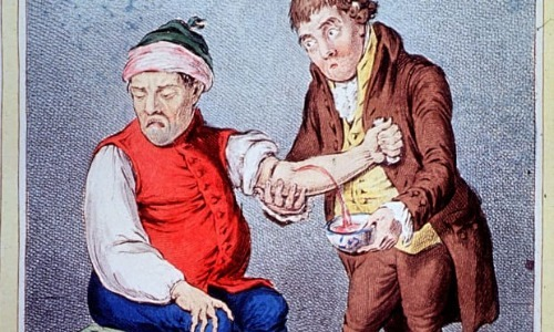 Bloodletting: Supposed Cure for All Ailments