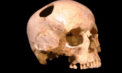 Trepanning: Boring Holes in the Skull