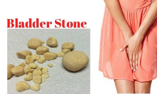 Birthing Bladder Stones