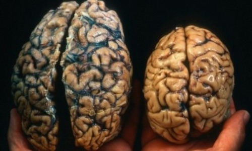 The Size Your Brain Determines Your Intelligence