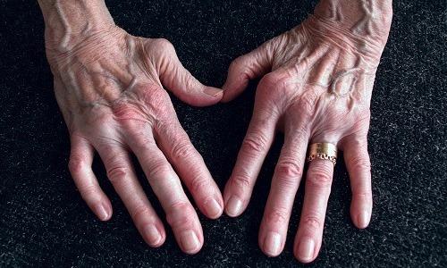 Vegan Diets Can Help Against Arthritis Ailments